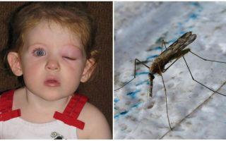 Apa yang perlu dilakukan jika seorang kanak-kanak mempunyai mata bengkak selepas gigitan nyamuk