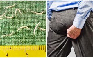 Gejala dan rawatan pinworms pada orang dewasa