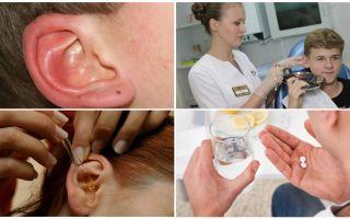 Tandakan di telinga seseorang: gejala dan rawatan
