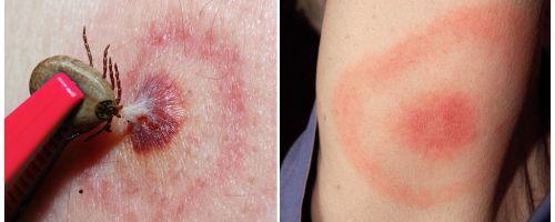 Apakah penyakit Lyme, gejala, rawatan dan foto