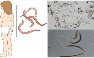 Apa pinworms dan bagaimana rupa mereka