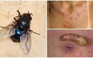 Satu lalat yang meletakkan larva di bawah kulit manusia