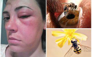 Bagaimana jika lebah sedikit ke dalam mata dan ia membengkak