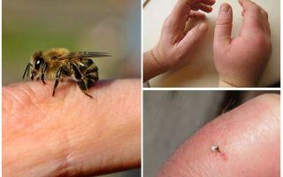 Apakah sengatan lebah berguna untuk seseorang?