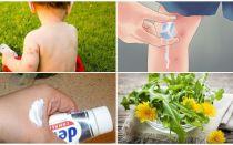 Bagaimana untuk mengurai gigitan nyamuk kanak-kanak