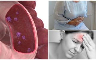 Cara menentukan kehadiran Giardia dalam tubuh manusia