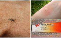 Bagaimana dan bagaimana untuk menghapus gatal dari gigitan nyamuk pada kanak-kanak dan orang dewasa