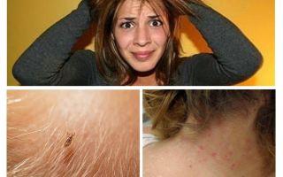 Pencegahan pediculosis dan kudis