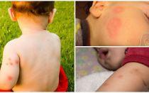 Dana untuk kanak-kanak selepas gigitan nyamuk