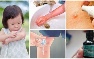 Bagaimana dan bagaimana untuk merawat gigitan nyamuk pada kanak-kanak