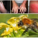 Gigit bumblebee
